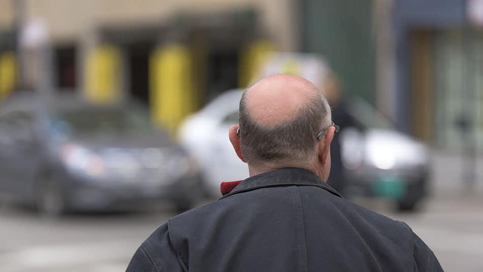 Greffe de cheveux - Tunisie