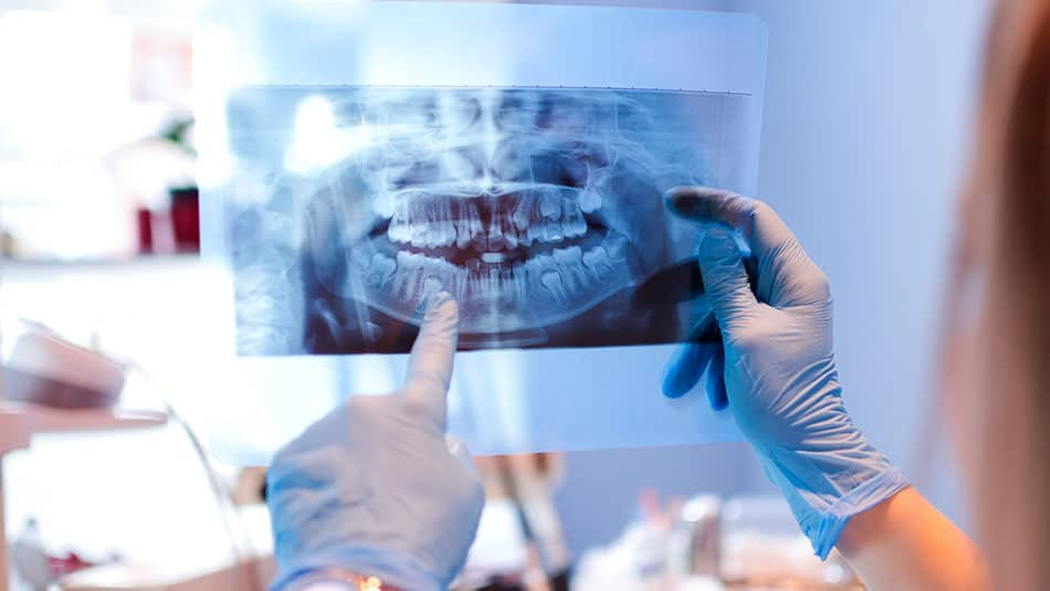 Fonctionnement chirurgie implantaire guidée